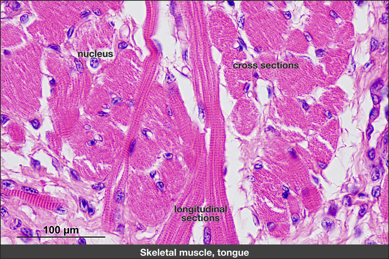 Skeletal muscle fibers in section of tongue