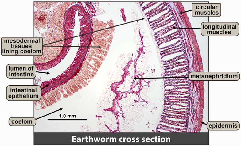 Earthworm cross section, higher magnification